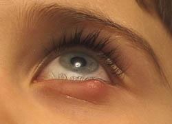 skaver i ögonen